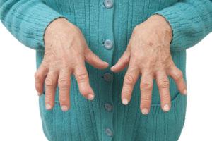 Rheumatoid Arthritis clinical trials